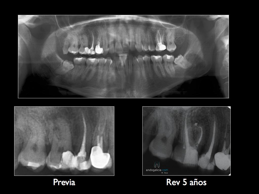 Endodoncia curva de un primer molar superior – endogalicia