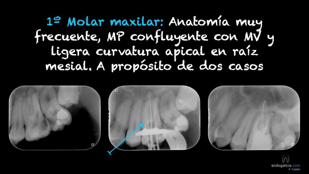 Anatomía frecuente en Molares maxilares – endogalicia