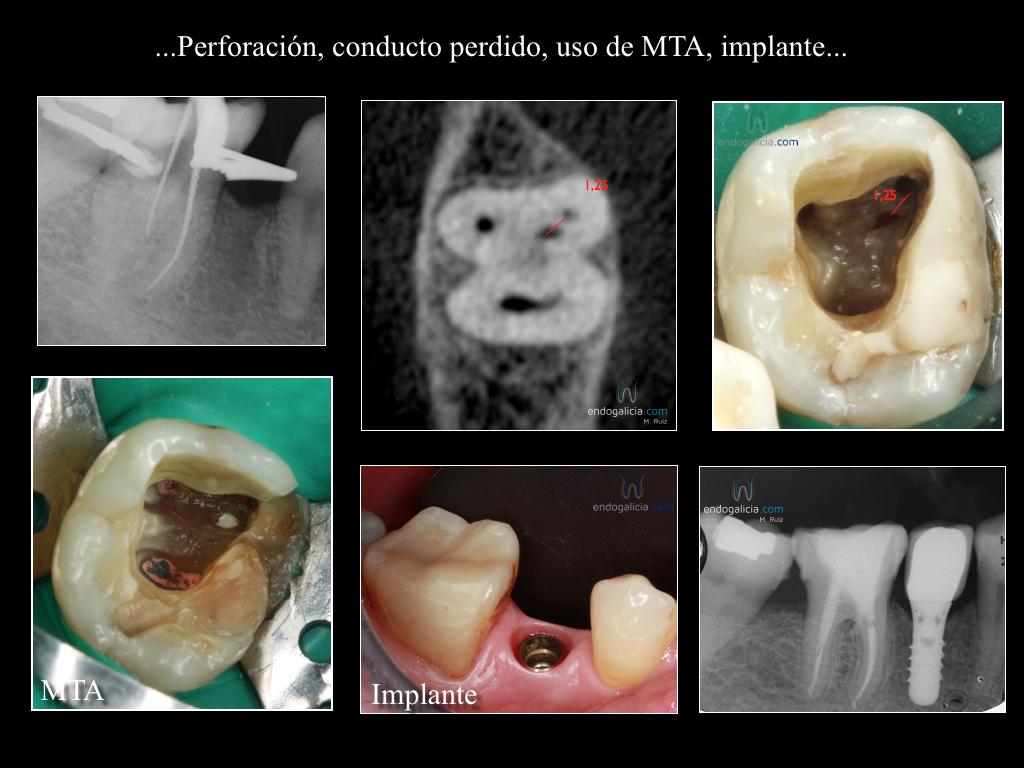 Buscando un conducto MV en un molar inferior con perforación ...
