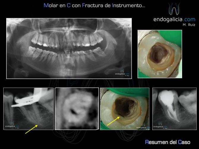 Anatomía Compleja – endogalicia - Page 2