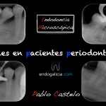 caries en pacientes periodontales.001