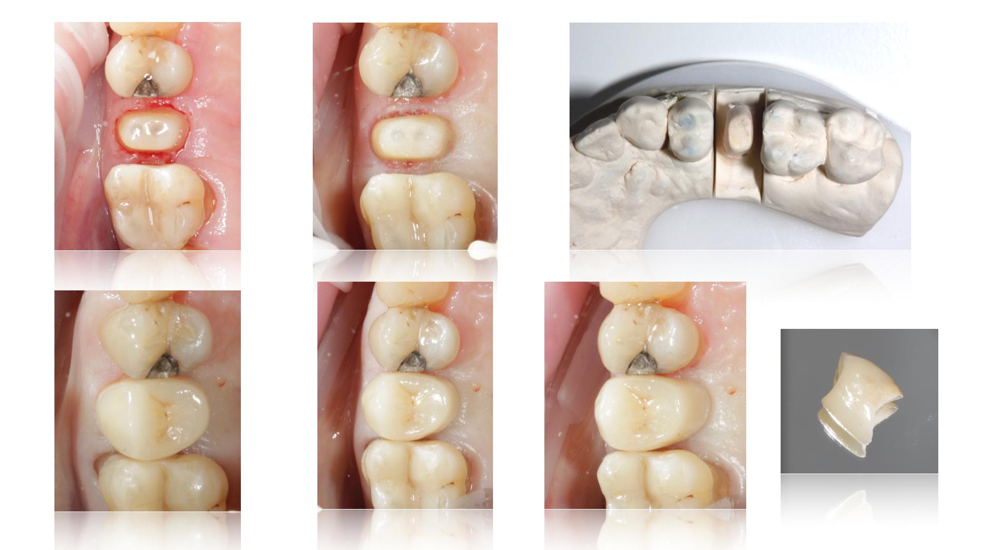 Fracturas cuspídeas en premolares – endogalicia